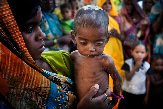 Tribal Undernutrition: A Persistent Concern